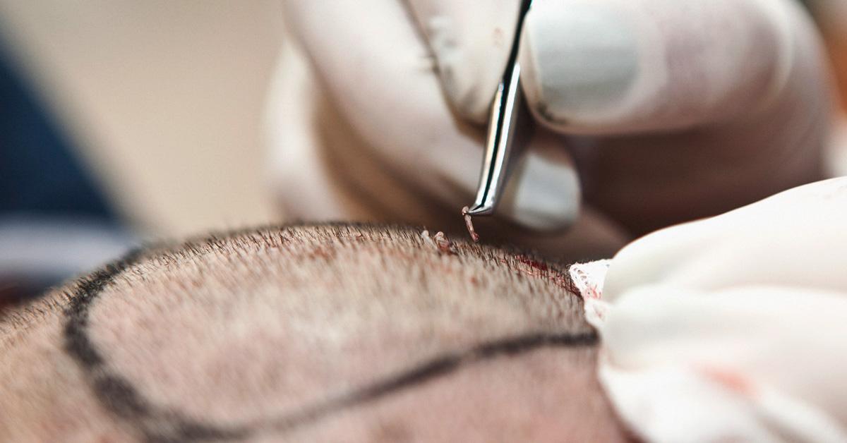 hair_transplant-1200x628-facebook کلینیک زیبایی کاشت مو